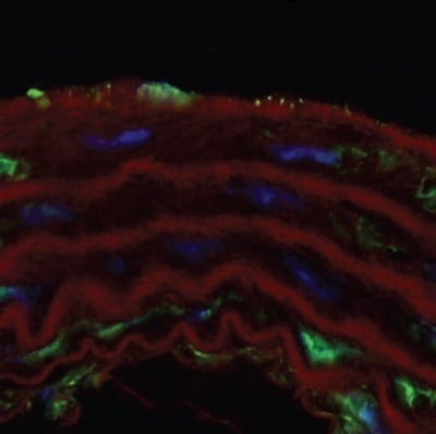 Immunohistochemistry (Frozen sections) - Anti-Estrogen Receptor beta antibody (ab3576)