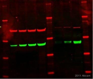 Western blot - Estrogen Receptor beta antibody (ab3577)