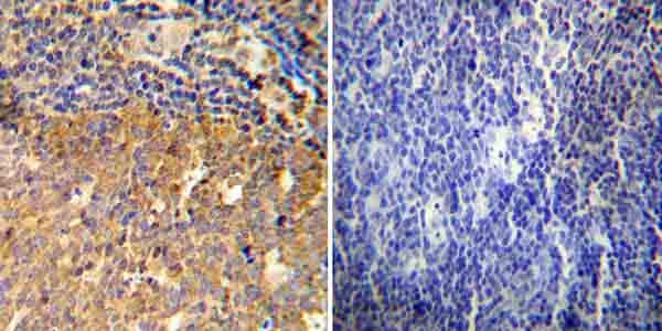 Immunohistochemistry (Formalin/PFA-fixed paraffin-embedded sections) - Anti-Glucocorticoid Receptor antibody (ab3578)
