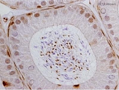 Immunohistochemistry (Formalin/PFA-fixed paraffin-embedded sections) - Anti-Glucocorticoid Receptor alpha antibody - ChIP Grade (ab3580)