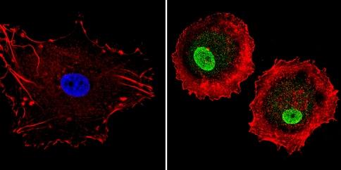 Immunocytochemistry - Anti-LXR alpha antibody (ab3585)