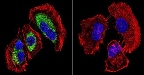 Immunocytochemistry/ Immunofluorescence - Anti-Calpain 1 [9A4H8D3] antibody (ab3589)