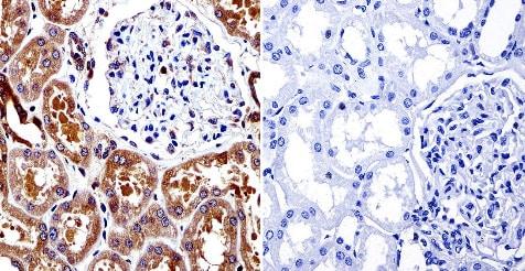 Immunohistochemistry (Formalin/PFA-fixed paraffin-embedded sections) - Anti-Calpain 1 [9A4H8D3] antibody (ab3589)