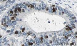 Immunohistochemistry (Formalin/PFA-fixed paraffin-embedded sections) - Anti-Aurora B antibody [mAbcam 3609] (ab3609)