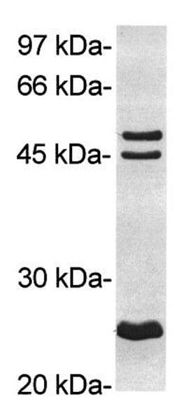 Western blot - Anti-RAGE antibody (ab3611)