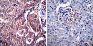 Immunohistochemistry (Formalin/PFA-fixed paraffin-embedded sections) - Anti-RAGE antibody (ab3611)