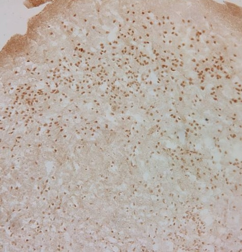 Immunohistochemistry (Formalin/PFA-fixed paraffin-embedded sections) - Anti-Glucocorticoid Receptor antibody - ChIP Grade (ab3671)