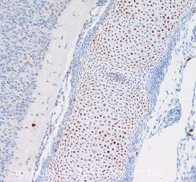 Immunohistochemistry (Formalin/PFA-fixed paraffin-embedded sections) - Anti-SOX9 antibody (ab3697)
