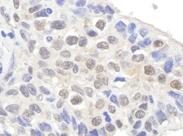 Immunohistochemistry (Formalin/PFA-fixed paraffin-embedded sections) - Anti-Claspin antibody (ab3720)