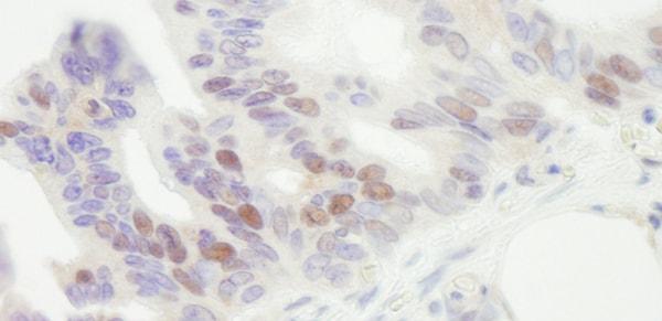 Immunohistochemistry (Formalin/PFA-fixed paraffin-embedded sections) - Anti-MCM4 antibody (ab3728)