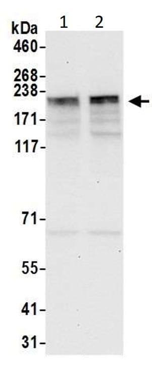 Western blot - Anti-KIF14 antibody (ab3747)