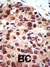 Immunohistochemistry (Formalin/PFA-fixed paraffin-embedded sections) - Anti-PRMT3 antibody - ChIP Grade (ab3765)