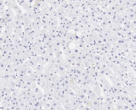 Immunohistochemistry (Formalin/PFA-fixed paraffin-embedded sections) - Anti-Aggrecan antibody [6-B-4] (ab3778)