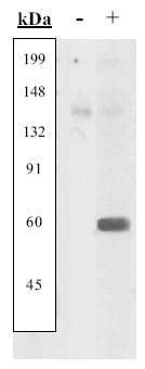 Western blot - UBE2I / UBC9 full length protein (ab3803)