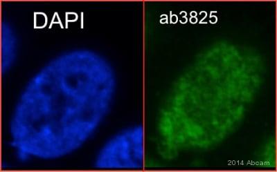 Immunocytochemistry - Anti-Topoisomerase I antibody (ab3825)