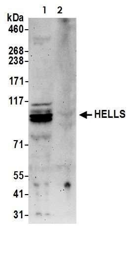 Western blot - Anti-SMARCA6 antibody (ab3851)