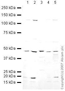 Western blot - Anti-BAF53A antibody - ChIP Grade (ab3882)