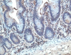 Immunohistochemistry (Formalin/PFA-fixed paraffin-embedded sections) - Anti-GPR2/CCR10 antibody (ab3904)