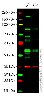 Western blot - Anti-Cyclin E1 antibody [HE12] (ab3927)