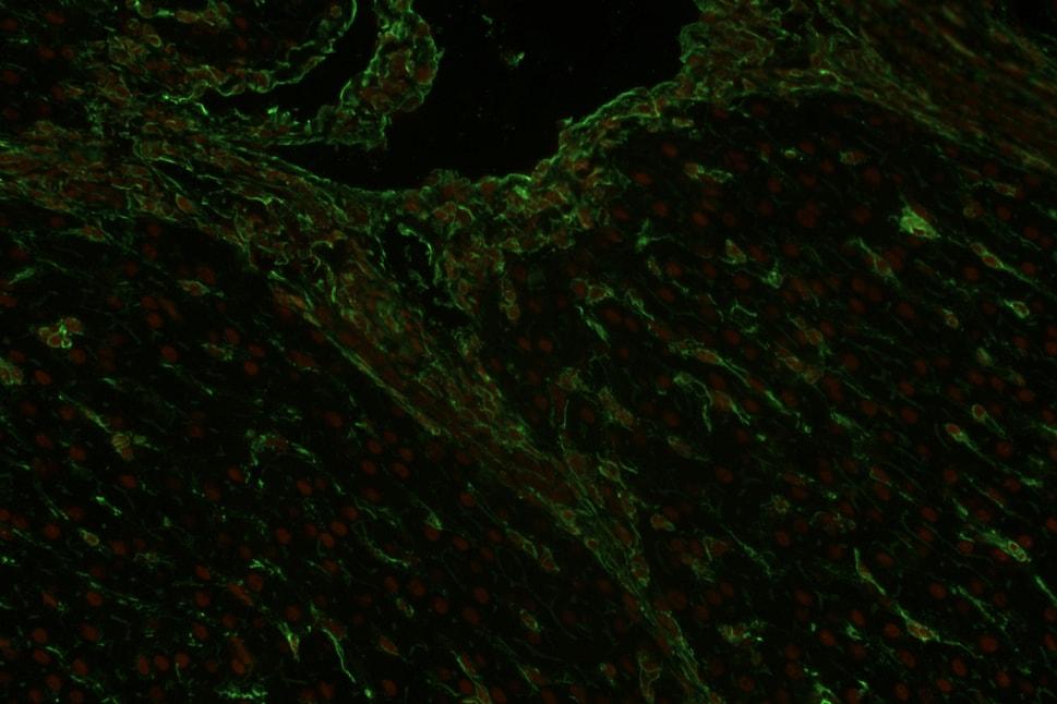 Immunohistochemistry (Formalin/PFA-fixed paraffin-embedded sections) - Anti-Vimentin antibody [VI-RE/1] (ab3974)