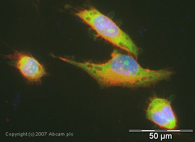 Immunocytochemistry/ Immunofluorescence - Anti-SUGT1 antibody (ab30931)