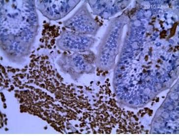 Immunohistochemistry (Formalin/PFA-fixed paraffin-embedded sections) - Anti-TGF beta Receptor I antibody (ab31013)