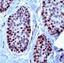 Immunohistochemistry (Formalin/PFA-fixed paraffin-embedded sections) - Anti-MCM2 antibody, prediluted (ab31160)
