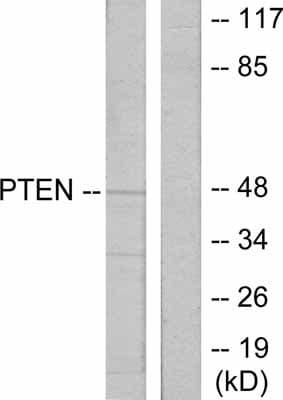 Western blot - Anti-PTEN antibody (ab31392)