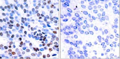 Immunohistochemistry (Formalin/PFA-fixed paraffin-embedded sections) - Anti-JunB antibody (ab31421)