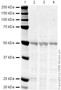 Western blot - Anti-beta Arrestin 1 antibody (ab31848)