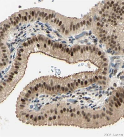 Immunohistochemistry (Formalin/PFA-fixed paraffin-embedded sections) - Anti-DDX1 antibody (ab31963)