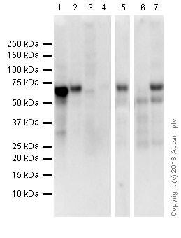 免疫印迹-抗雌激素受体α抗体[E115]-芯片级(ab32063)