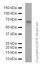 Western blot - Anti-Estrogen Receptor alpha antibody [E115] - ChIP Grade (ab32063)