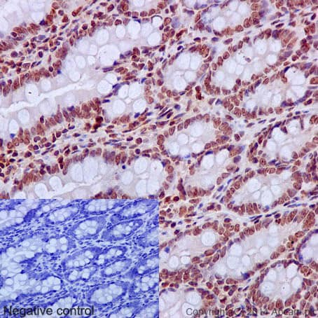 Immunohistochemistry (Formalin/PFA-fixed paraffin-embedded sections) - Anti-Cleaved PARP1 antibody [E51] (ab32064)