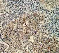 Immunohistochemistry (Formalin/PFA-fixed paraffin-embedded sections) - Anti-pro Caspase-7 antibody [Y33] (ab32067)