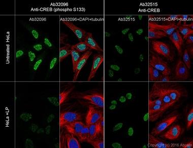 免疫细胞化学/免疫荧光-抗CREB(磷酸S133)抗体[E113](ab32096)