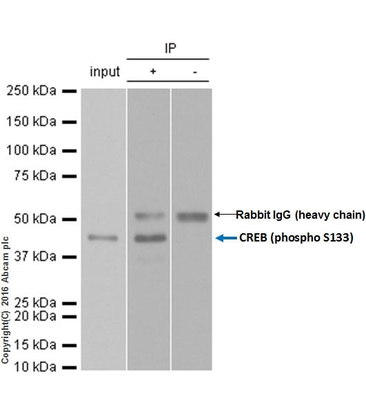 免疫沉淀-抗CREB(磷酸S133)抗体[E113](ab32096)