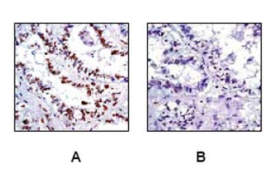免疫组织化学(福尔马林/PFA固定石蜡切片)-抗CREB(磷酸S133)抗体[E113](ab32096)