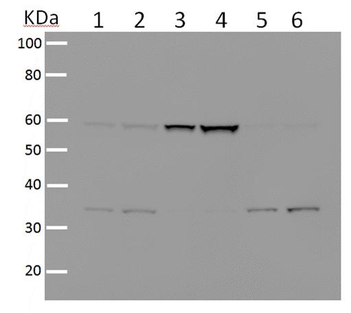 Western印迹-抗HDAC2抗体[Y461](AB32117)