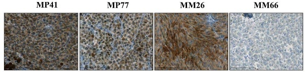 Immunohistochemistry (Formalin/PFA-fixed paraffin-embedded sections) - Anti-Bcl-2 antibody [E17] (ab32124)