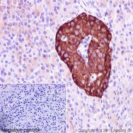 免疫组织化学(福尔马林/PFA固定石蜡切片)-抗突触素抗体[YE269](ab32127)