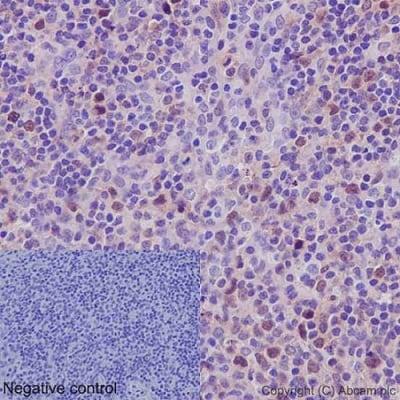 免疫组织化学(福尔马林/PFA固定石蜡切片)-抗Cdk2抗体[E304](ab32147)