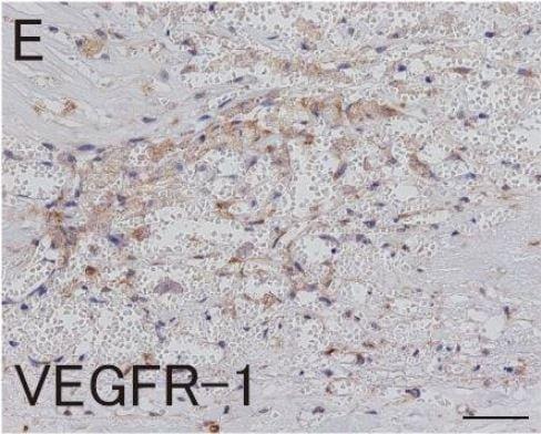 免疫组织化学(福尔马林/PFA固定石蜡切片)-抗VEGF受体1抗体[Y103](ab32152)