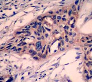 Immunohistochemistry (Formalin/PFA-fixed paraffin-embedded sections) - Anti-Caspase-3 antibody [E87] (ab32351)
