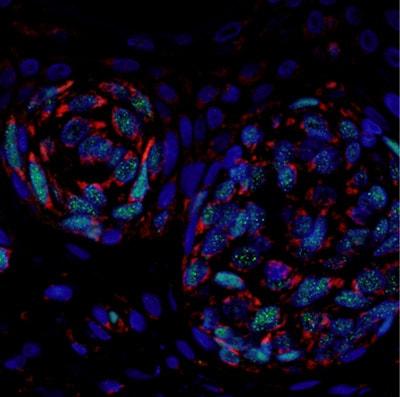 Immunohistochemistry (Formalin/PFA-fixed paraffin-embedded sections) - Anti-Bcl-XL antibody [E18] (ab32370)