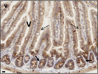 Immunohistochemistry (Formalin/PFA-fixed paraffin-embedded sections) - Anti-PKC alpha antibody [Y124] (ab32376)