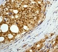 Immunohistochemistry (Formalin/PFA-fixed paraffin-embedded sections) - Anti-AKT3 + AKT2 + AKT1 antibody [Y89] (ab32505)