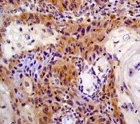 Immunohistochemistry (Formalin/PFA-fixed paraffin-embedded sections) - Anti-STAT6 antibody [YE361] (ab32520)