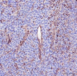 Immunohistochemistry (Formalin/PFA-fixed paraffin-embedded sections) - Anti-CCR7 antibody [Y59] (ab32527)