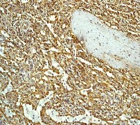 Anti-CCR7 antibody [Y59] (ab32527)